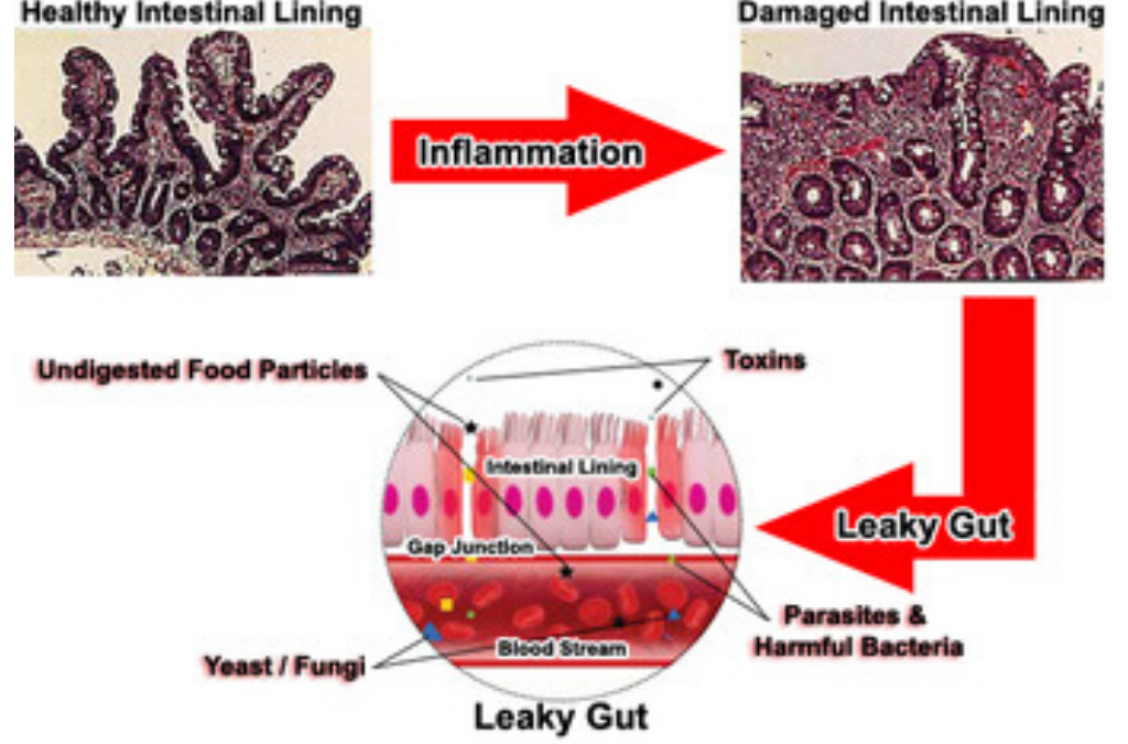 Altered Immunity and Leaky Gut Syndrome